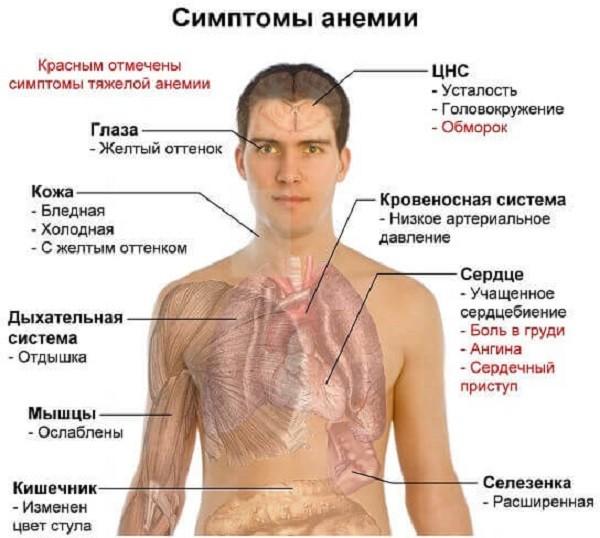 описание заболевания анемия