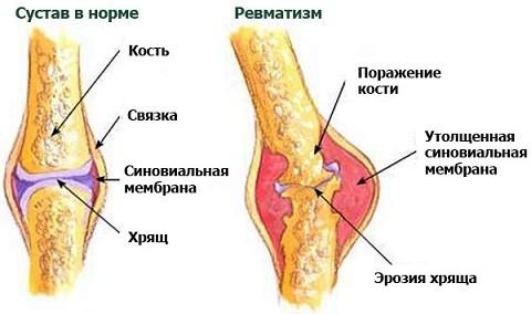 Суставной ревматизм лечение народными средствами болит сустав колена при сгибе