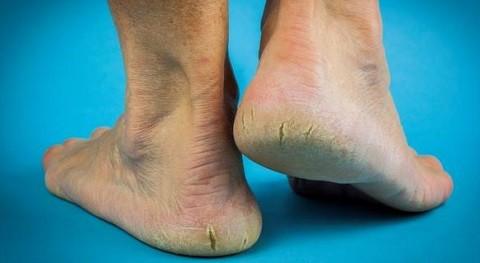 заболевание трещины на пятках