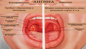 описание заболевания ангина
