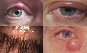 описание заболевания блефарит