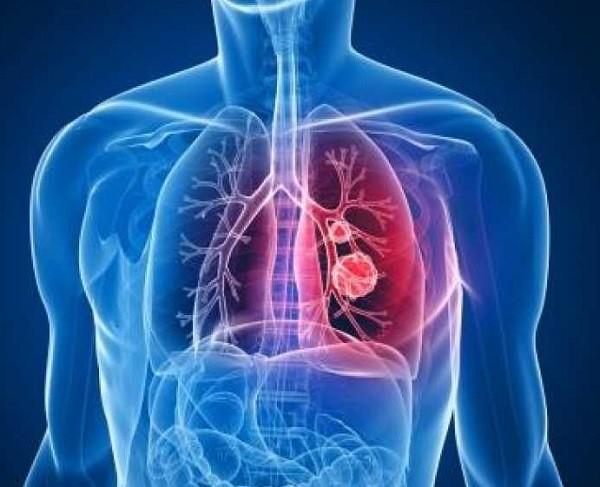 заболевание пневмония