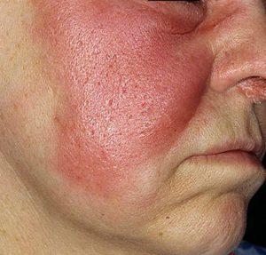 рожистое воспаление на щеке