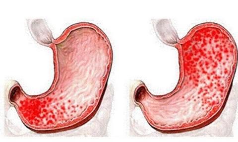 поврежденные стенки желудка