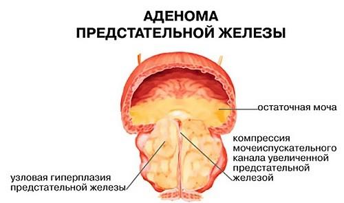 фото заболевания аденома предстательной железы