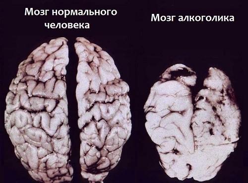 мозг здорового и больного алкоголизмом человека