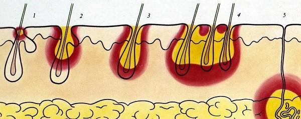 как развивается пиодермия