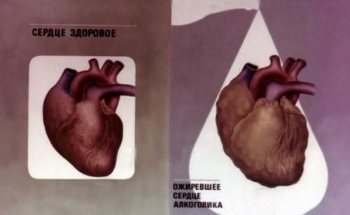 сердце здорового и больного алкоголизмом человека