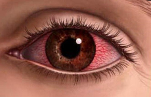 ожог глаз лечение