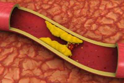 сосуды и холестерин