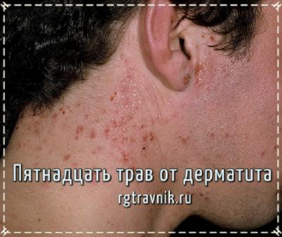 как выглядит дерматит