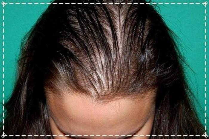 лечение выпадения волос дома