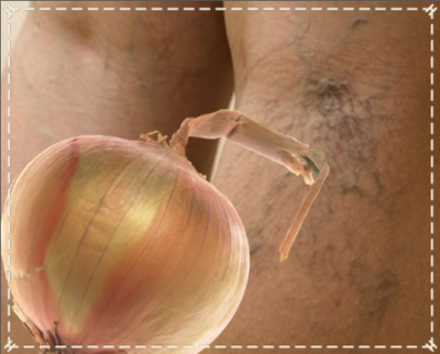 лечение варикоза луком