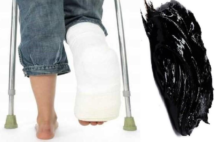 лечение переломов мумие