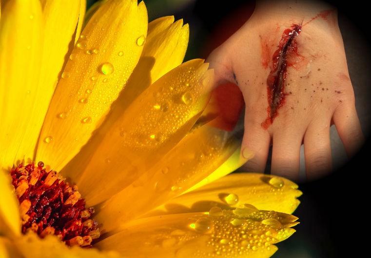 календула для лечения ран