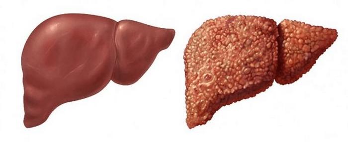 больная и здоровая печень
